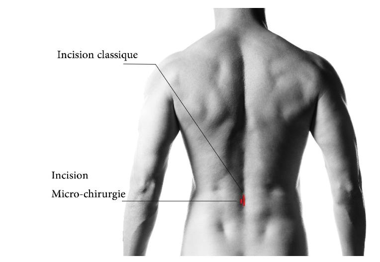 Le traitement chirurgical de la hernie discale lombaire