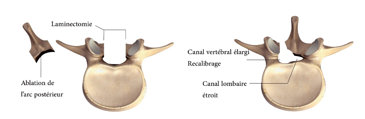 Comme choisir lensemble est important à osteokhondroze