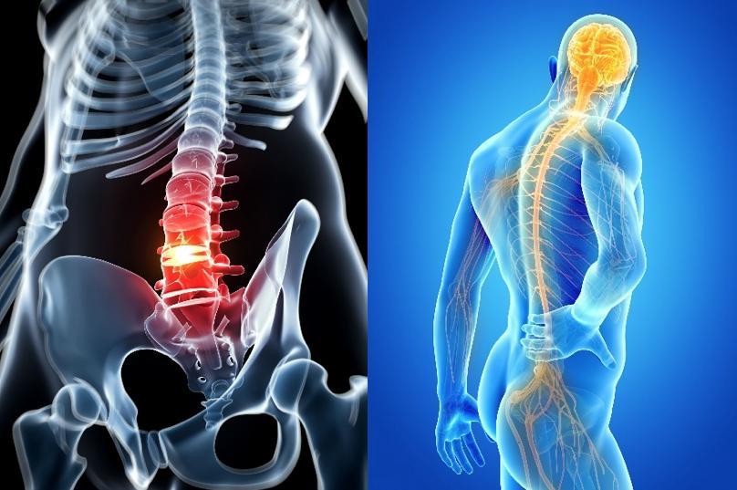 discopathie Les symptômes et l'évolution, le diagnostic