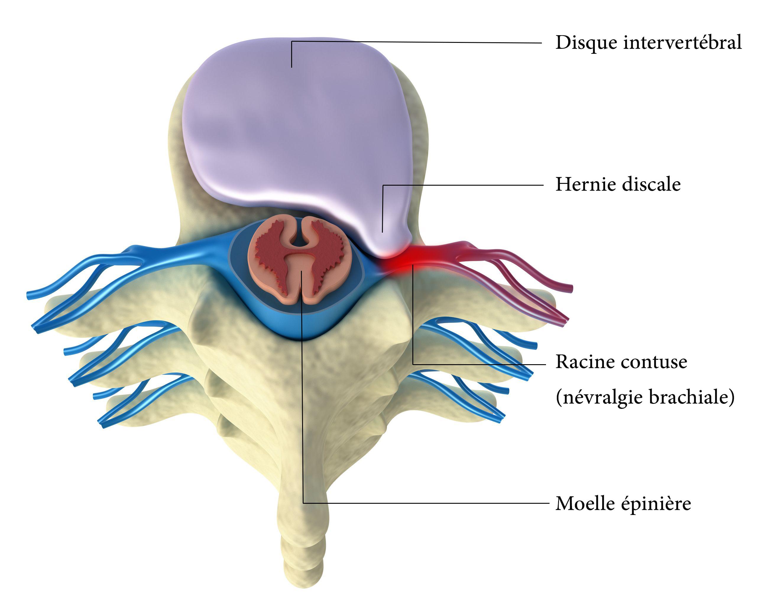 La hernie discale cervicale et l'uncodiscarthrose