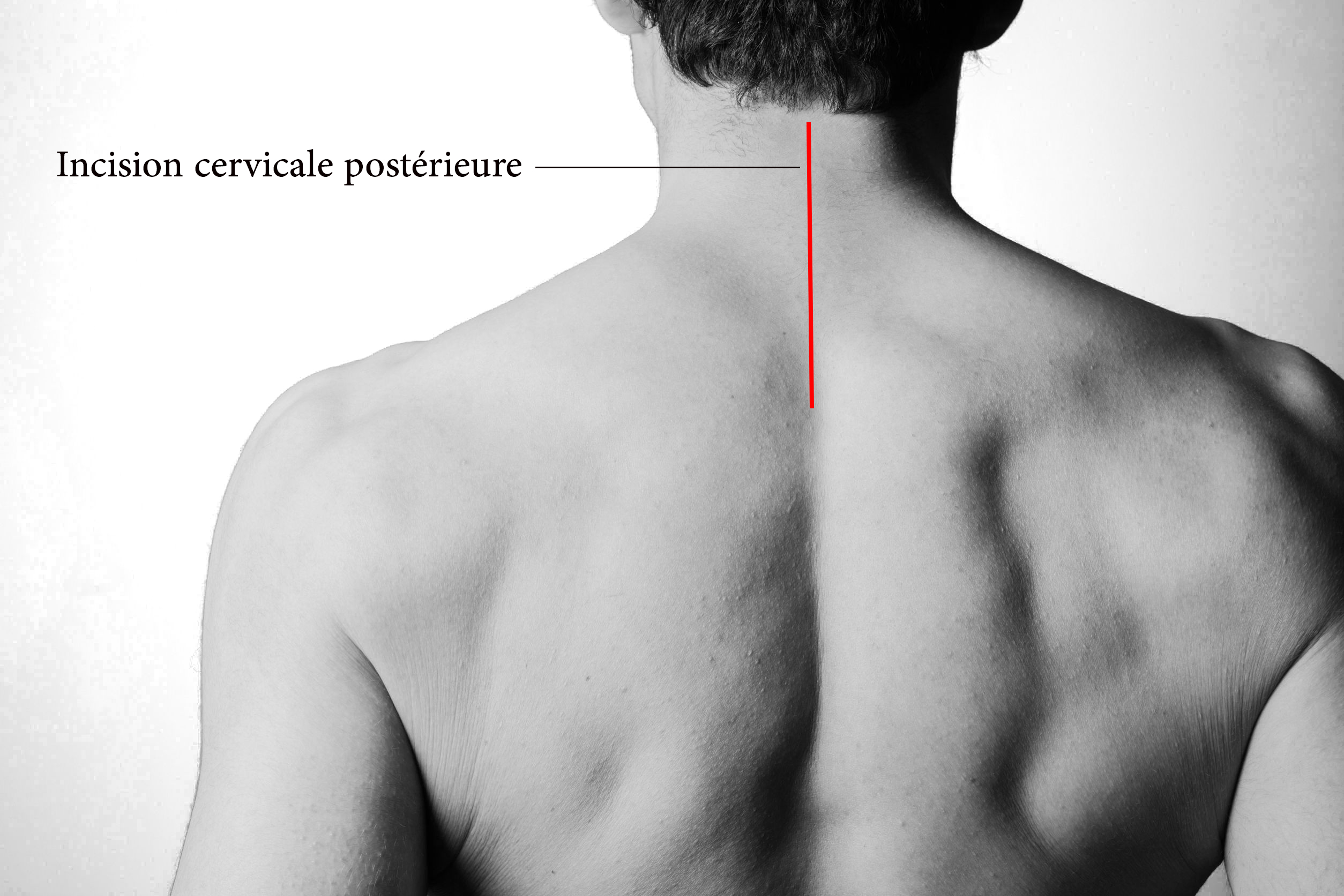 incision laminectomie cervicale CHIRURGIE D U DOS