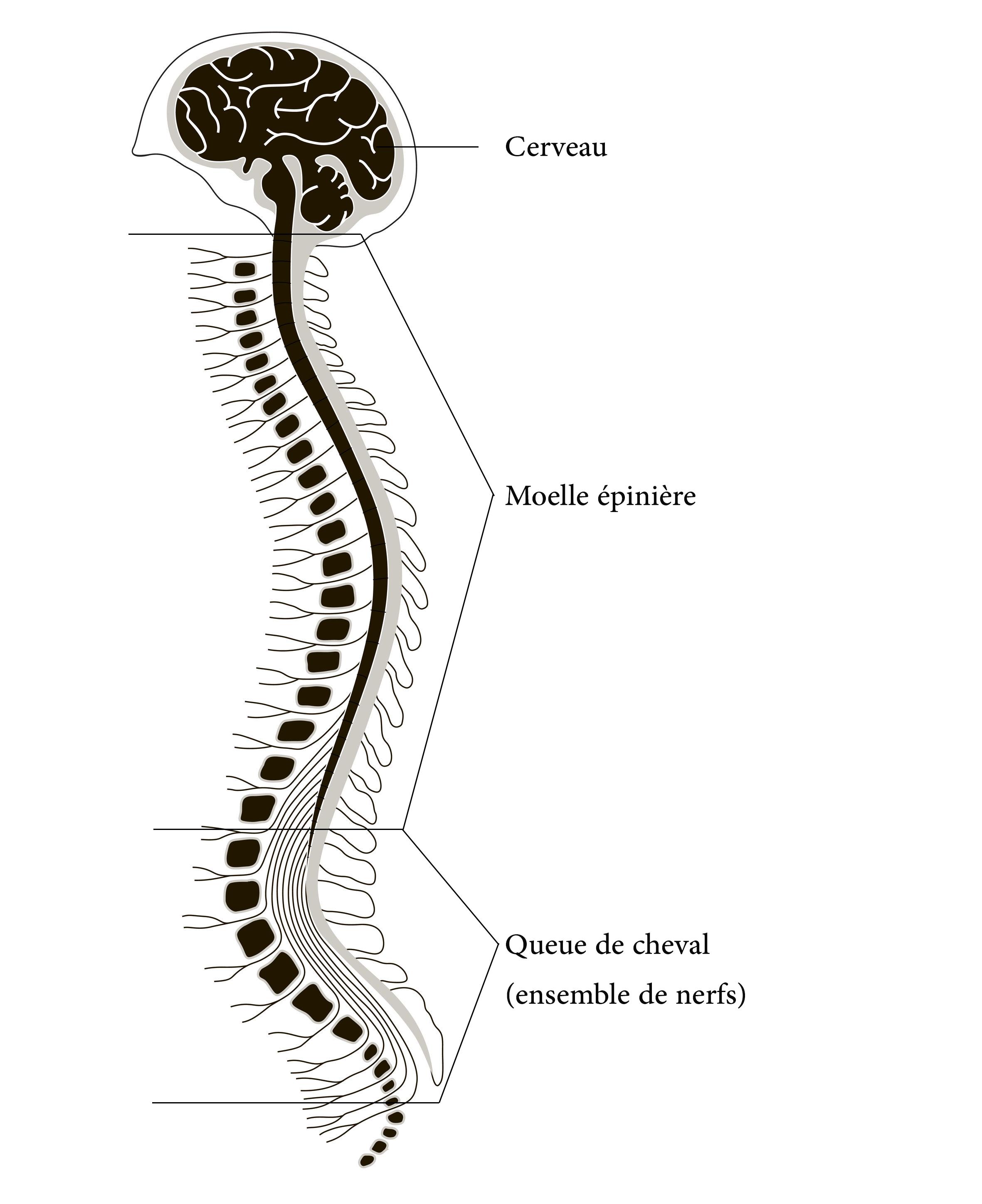 La discopathie dégénérative lombaire et les lombalgies chroniques