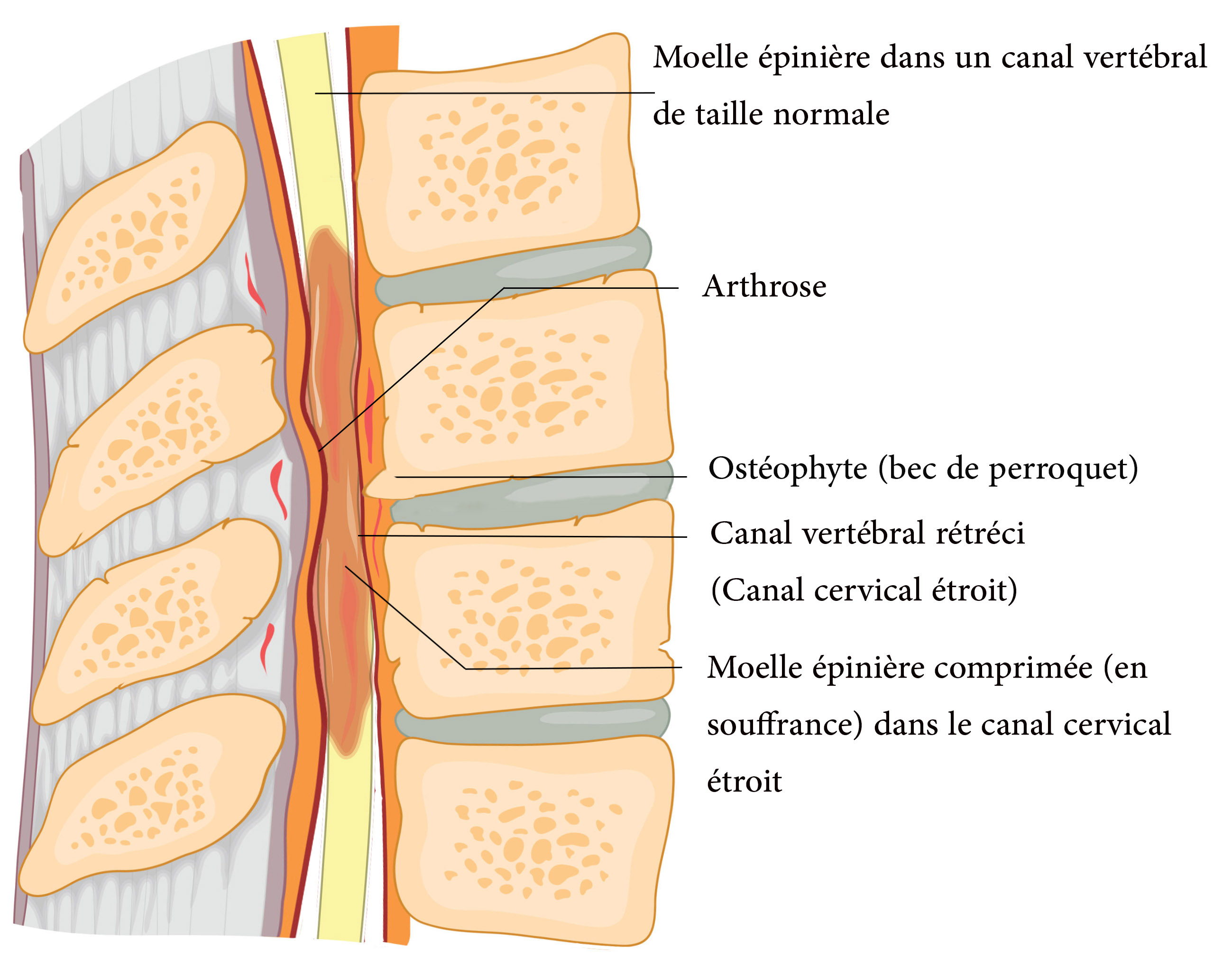 Le canal lombaire étroit (CLE) et la sténose foraminale.