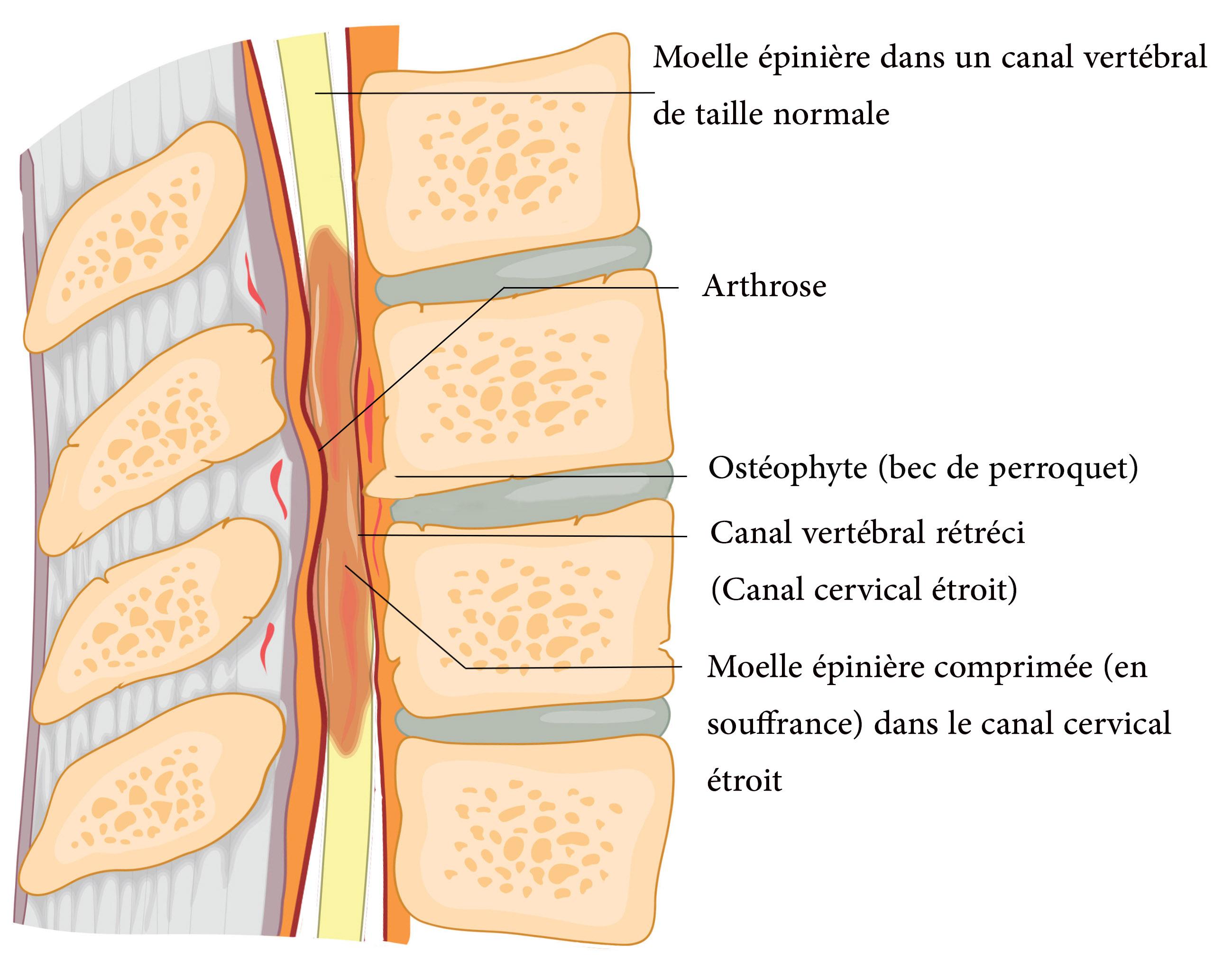 Le canal cervical étroit (CCE) et la myélopathie cervicarthrosique.