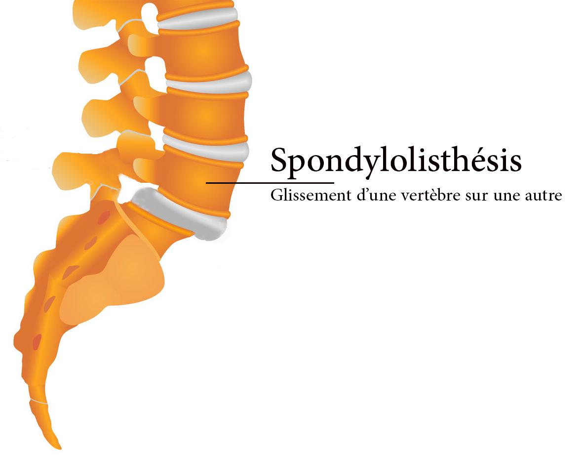 Le spondylolisthésis